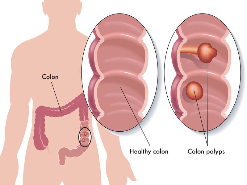 polyps in the colon
